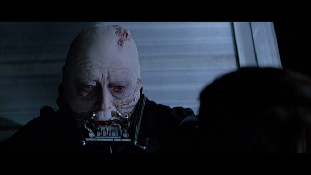 STAR WARS: Injuries of Darth Vader