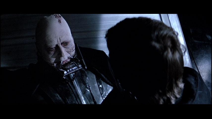 STAR WARS: Injuries of Darth Vader on